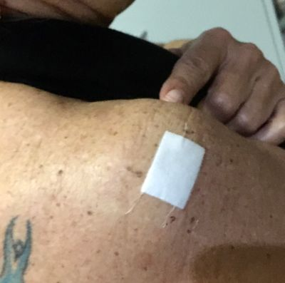 Biopsy Day - Right Shoulder x 1