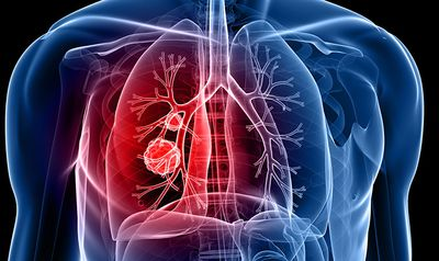 lung-cancer_690.jpg